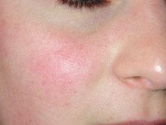 sante_en-savoir-plus-sur-le-psoriasis2