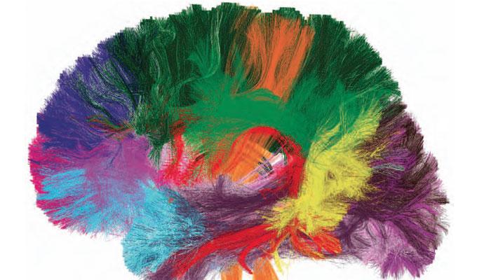 cerveau stress psyco