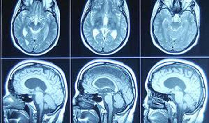 cerveau,psyco,santé