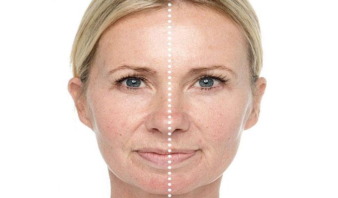 La médecine nationale le blanchiment la peau