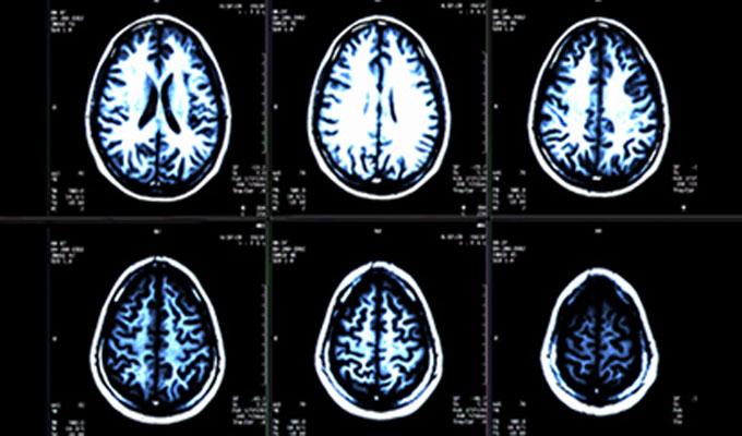 santé-cerveau
