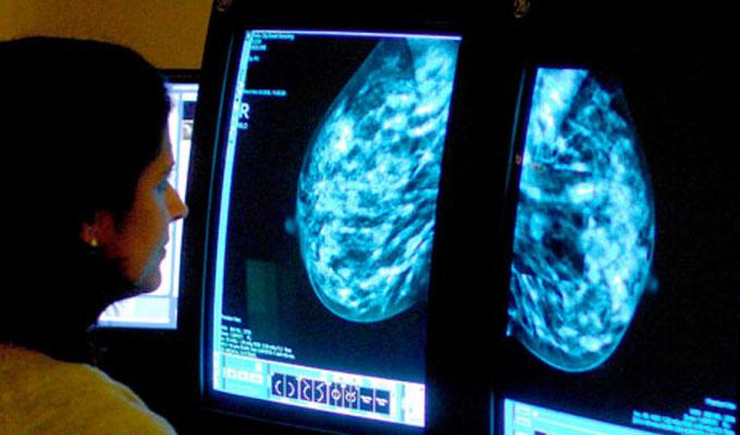 cancer-du-sein-étude-santé