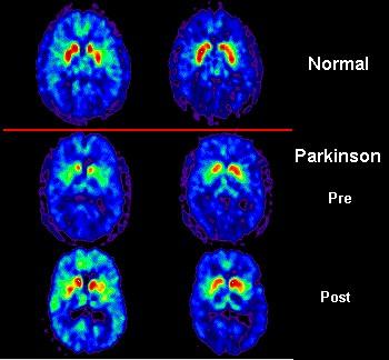 Parkinson-santé-cerveau