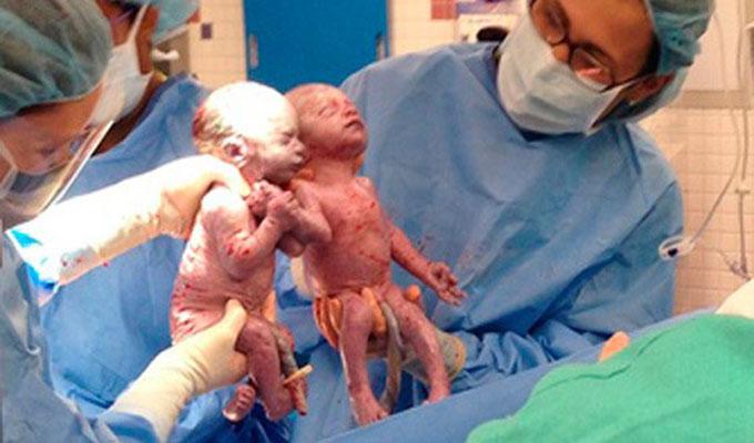 bébé-jumeaux