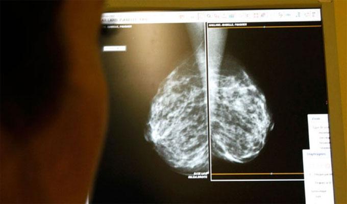 cancer-sain-santé