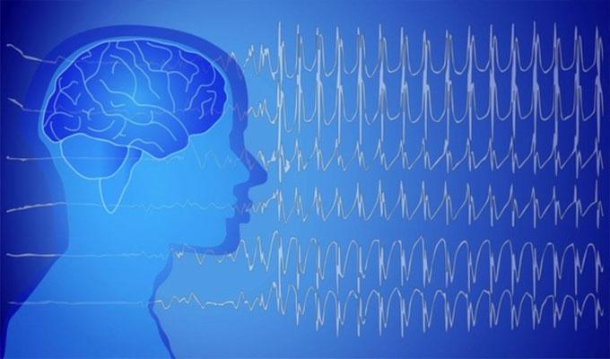 sante-epilepsie-