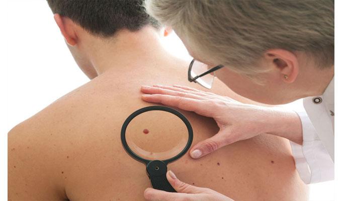 santé-cancer-peau-