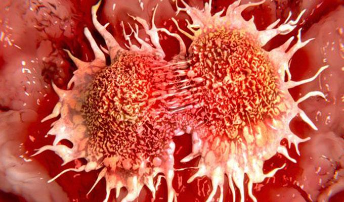santé-cancer